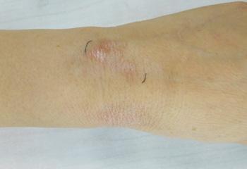 治疗2个月后手腕白斑逐渐消退