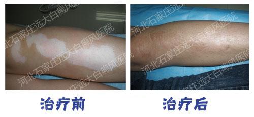 自体组织工程皮肤移植术